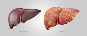 cancerul hepatic definitie hpv risques pour lhomme