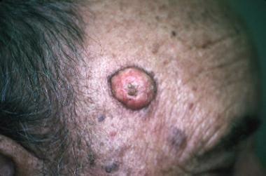human papillomavirus in keratoacanthoma papilloma lesions
