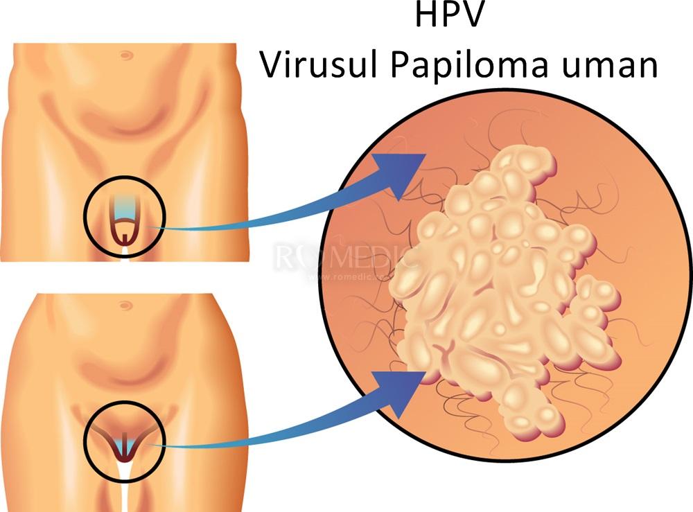 hpv papiloma virus uman giardia paraziti simptome