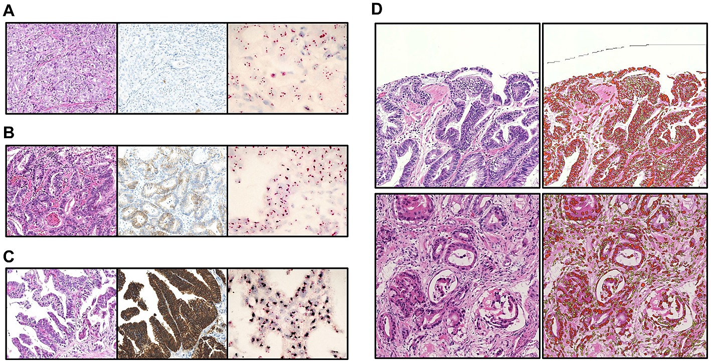 cancer gastric biopsial cancer cells on cervix hpv