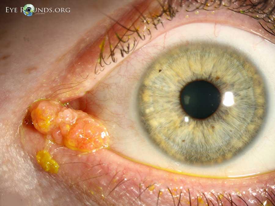 papilloma of conjunctiva hpv virus gebarmutterhals