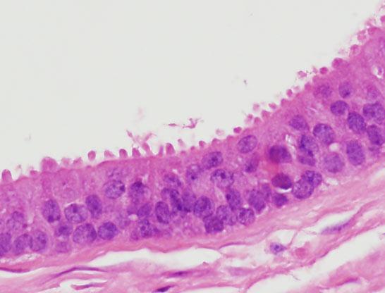 inverted urothelial papilloma ?? pastile detoxifiere colon