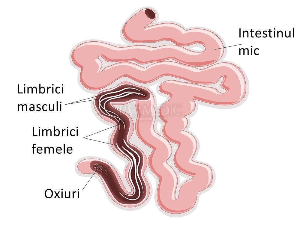 viermi intestinali oxiuri tratament