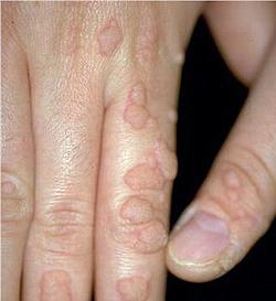 papillomavirus traitement chez lhomme nasal inverted papilloma