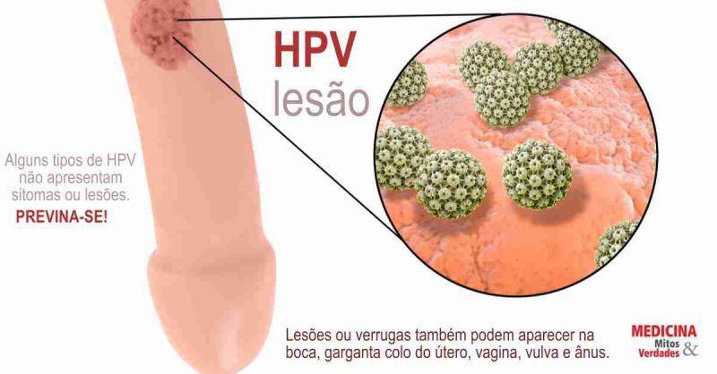 virus del papiloma humano vacuna efectos secundarios renal cancer urologists