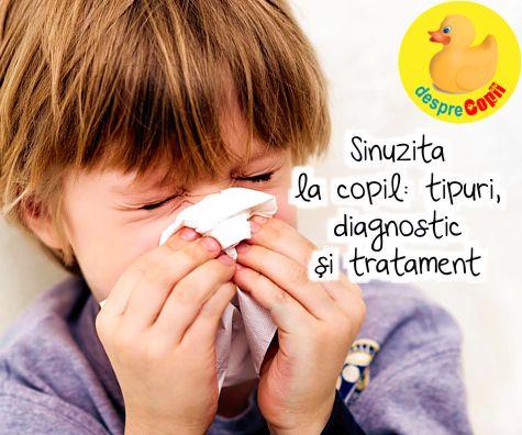 respiratie urat mirositoare sinuzita