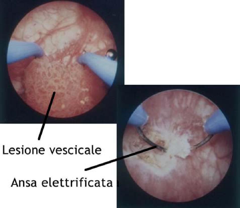 papilloma vescicale benigno cancer cerebral fase 3