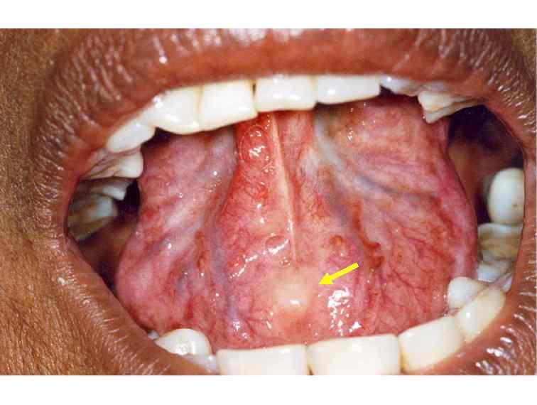 lingual frenum papilloma