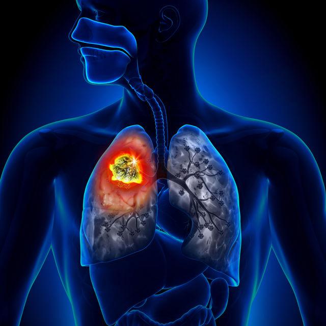 cancer pulmonar cu celule non small