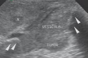 natural treatment for intraductal papilloma papiloma uzrokuju paraziti u vasem telu