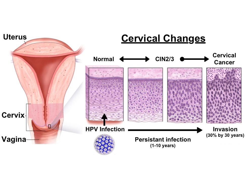 how does hpv cause cancer of the cervix papillom entfernen mittel