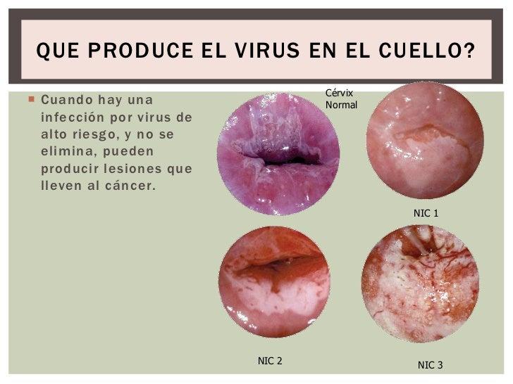 virus del papiloma nic 1 papiloma de celulas escamosas na boca