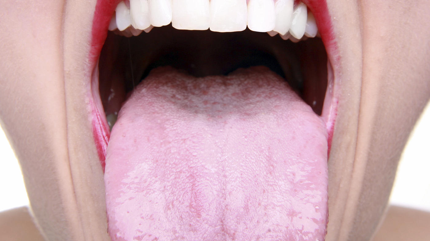 hpv mouth picture