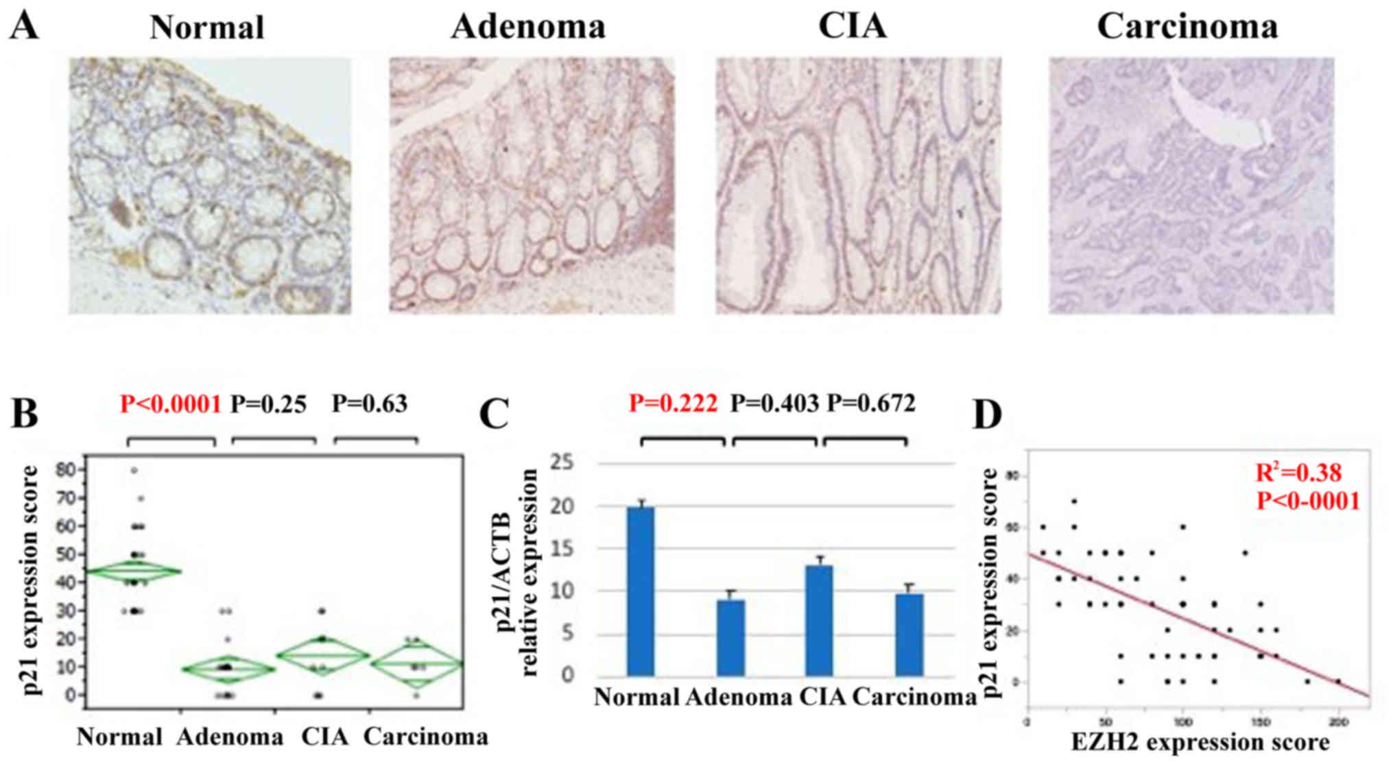 papillary thyroid cancer hypercalcemia