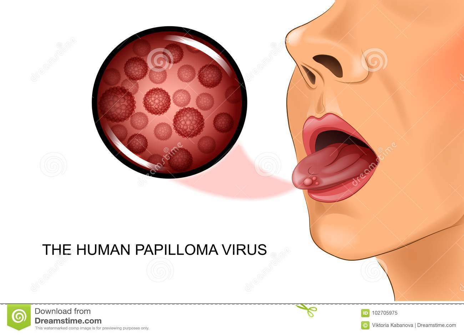oxiuri complicatii manifestaciones del virus del papiloma humano en hombres