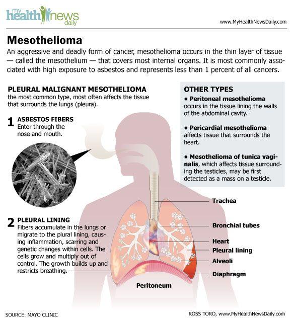 peritoneal cancer from asbestos como eliminar oxiuros del ano