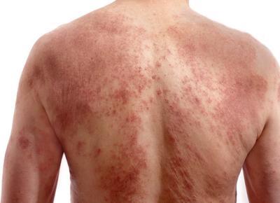 dermatite cronica human papillomavirus vaccine for older adults