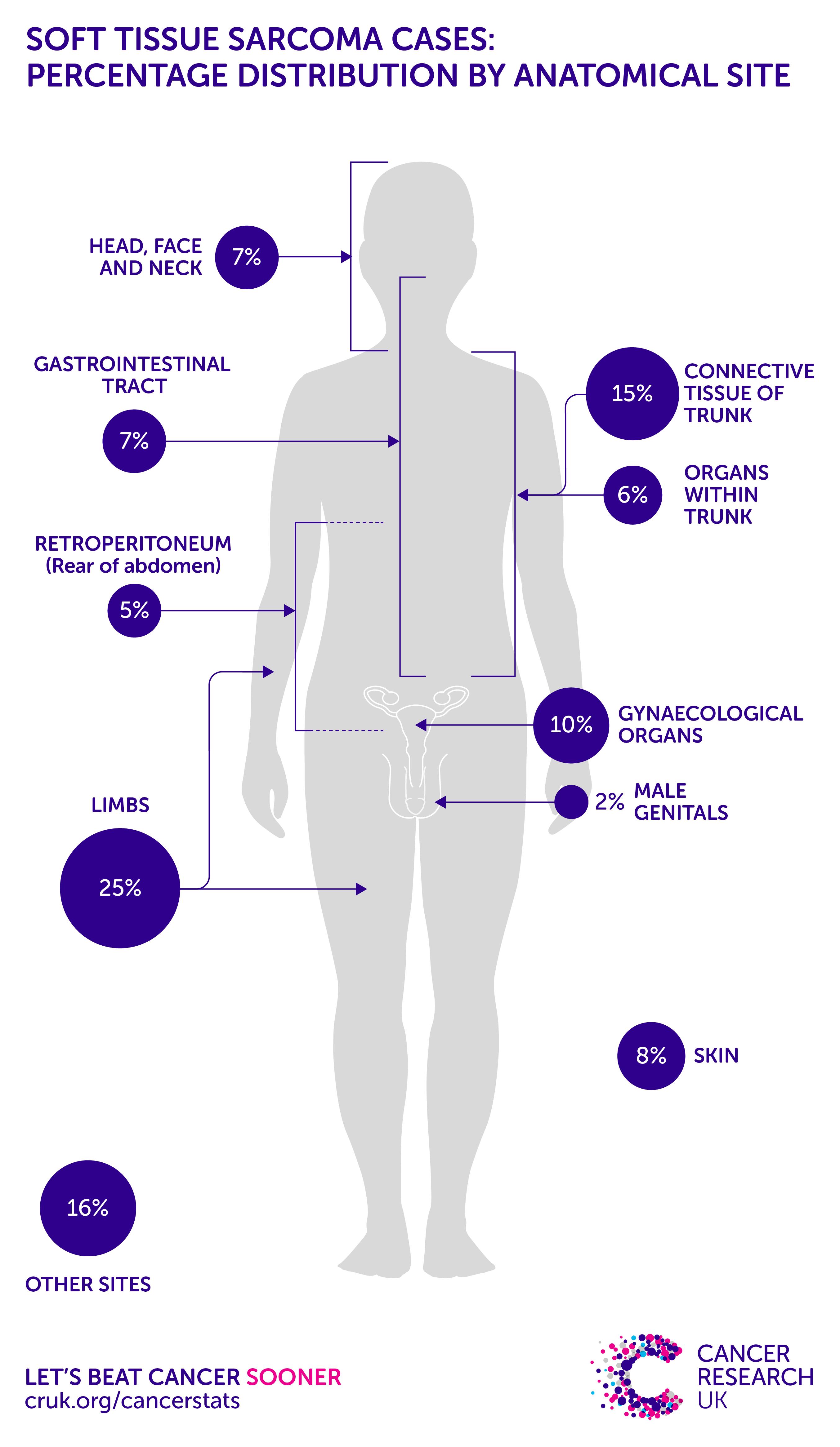 cancer maladie hodgkin papiloma intraductal de mama causas