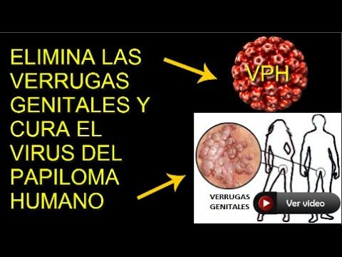 hpv lesion on gum