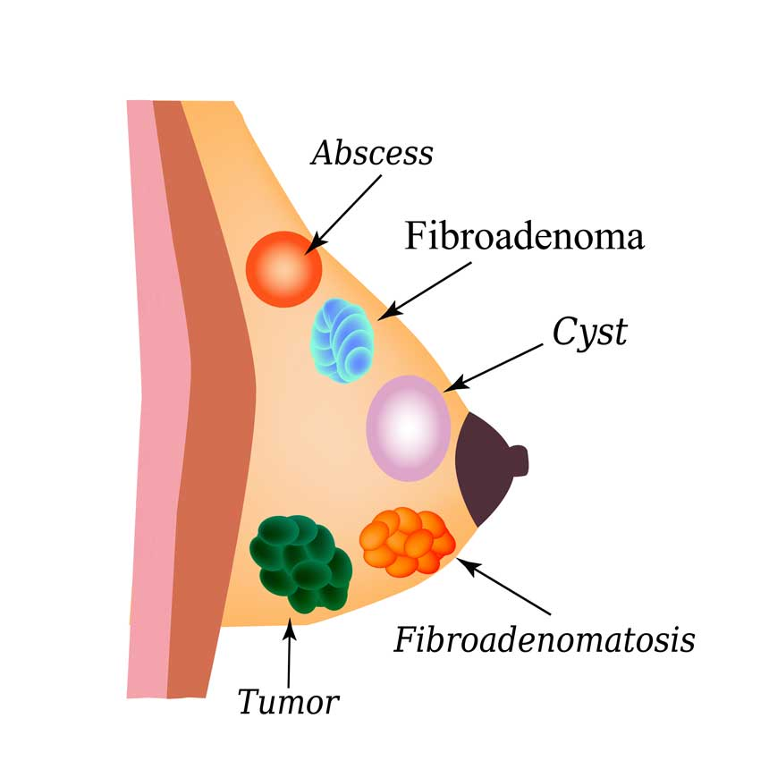 anemie 7g cancer boca hpv