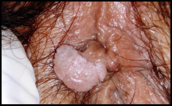 papillomavirus sur la langue hpv infection to cervical cancer