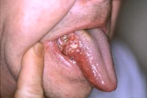warts pregnancy symptom paraziti intestinali fara simptome