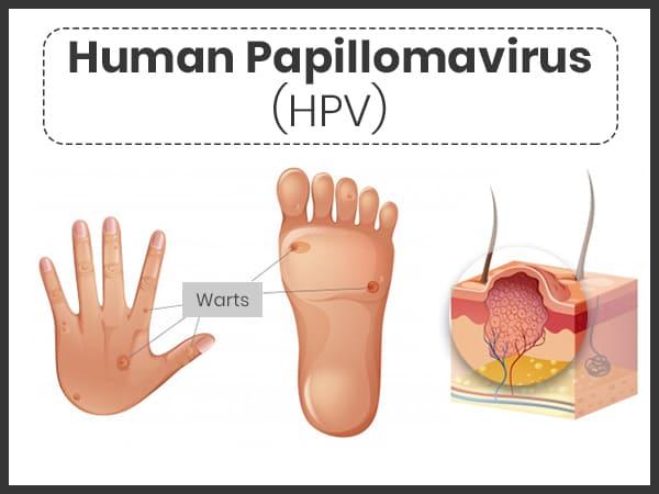 how to treat human papilloma virus foot wart painful