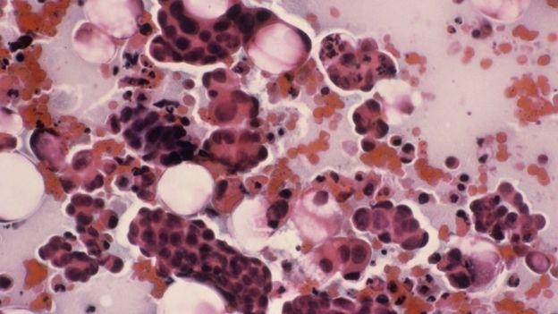 hpv vaccine prevents hpv virus detection