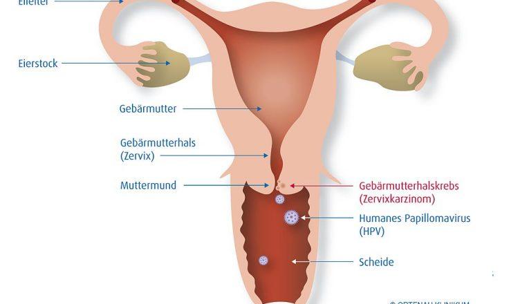 hpv virus en mujeres hpv ano interno