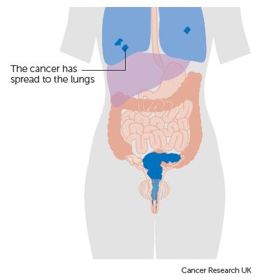 cervical cancer liver metastases cancer colon survie