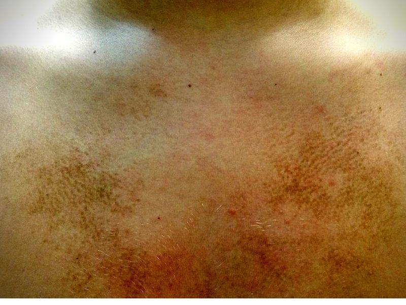 eyelid wart (papilloma) treatment