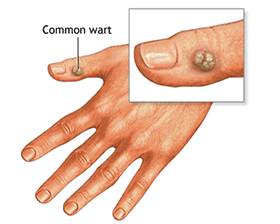 wart treatment in ayurveda papilloma lip icd 10
