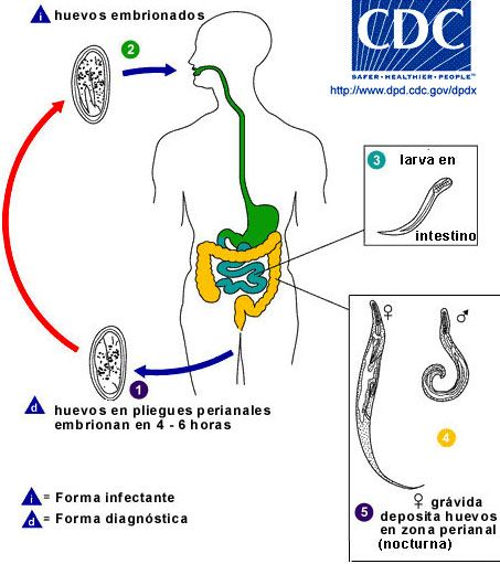 enterobius vermicularis ciclo de vida cancerul benign