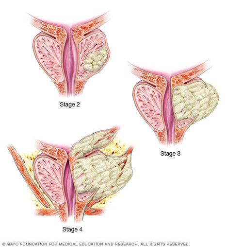 cancer de prostata etapas papillomas breast cancer risk