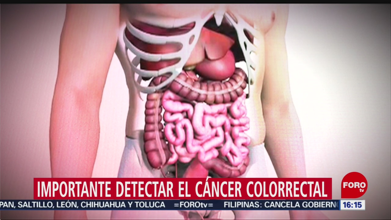 cancer de colon foro cancer de colon mujeres sintomas