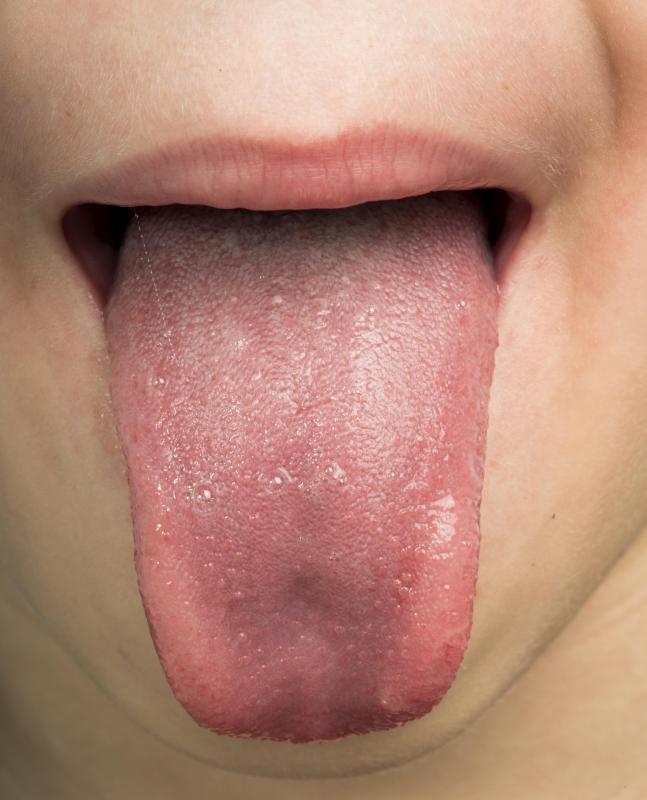 human papillomavirus tongue