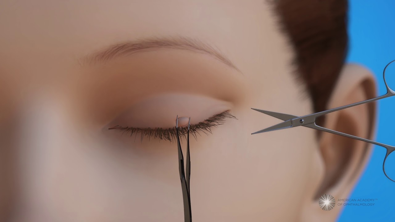 eyelid papilloma removal recovery time