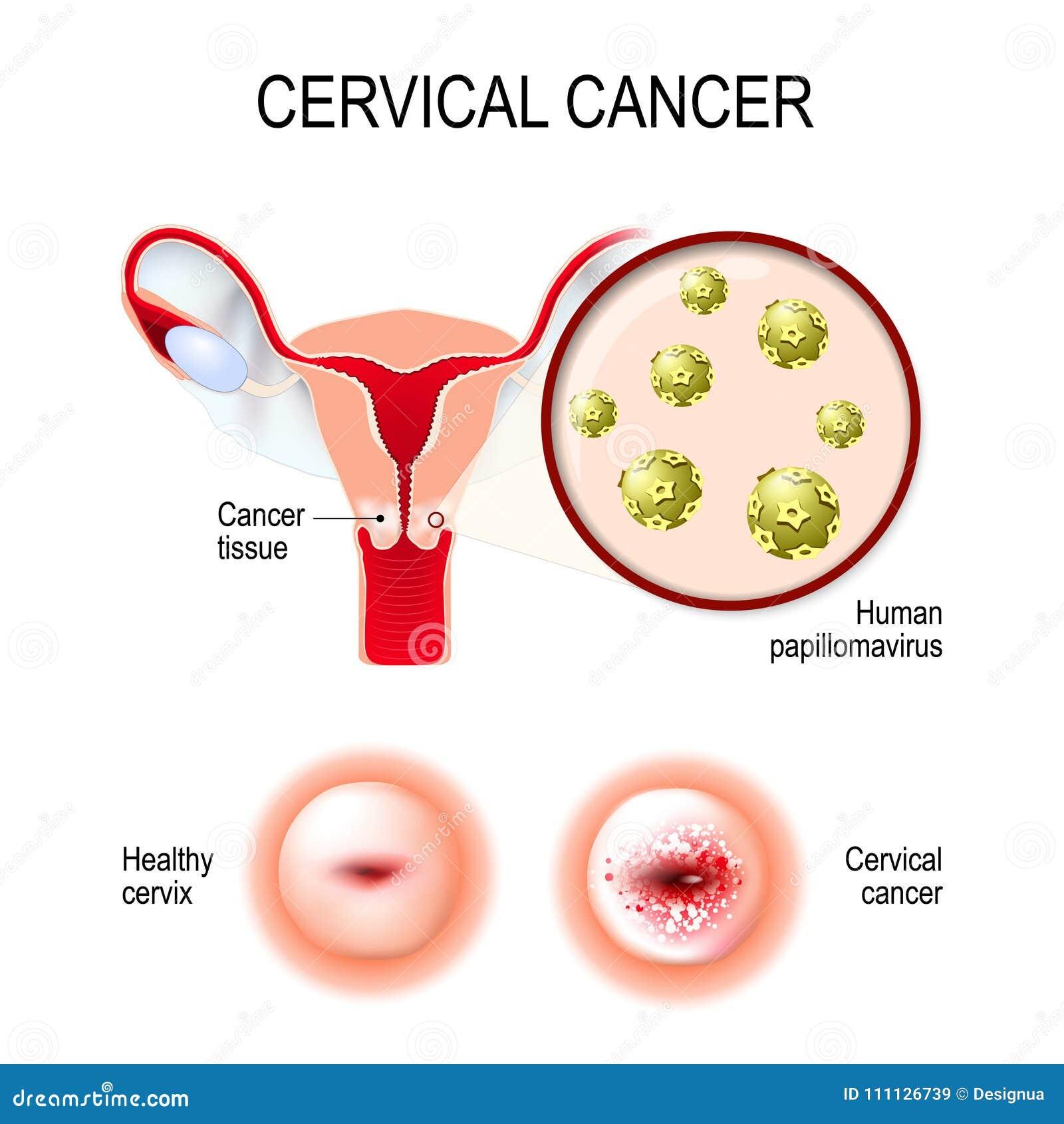 wart virus on cervix a toxine definition