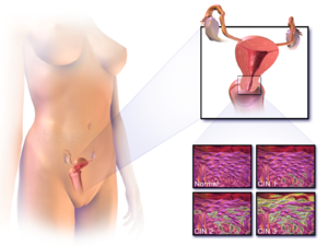 hpv virus and endometrial cancer endometrial cancer lancet