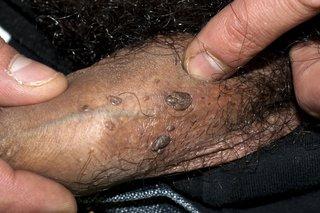 papilloma virus agli uomini