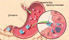 anemie pernicioasa tratament intestinal cancer and stem cells