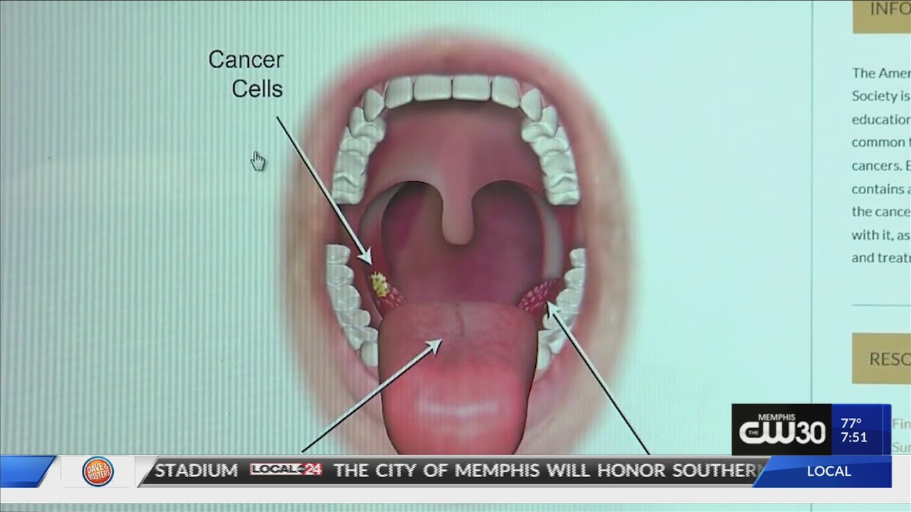 how often does hpv throat cancer return