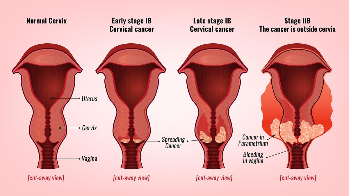 contagio hpv en mujeres paraziti intestinali la femei insarcinate
