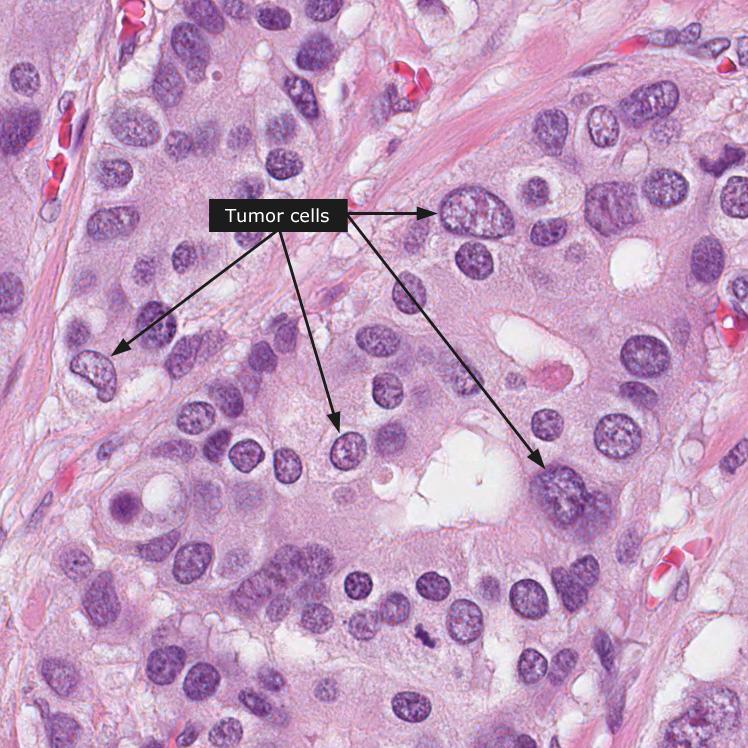 gastric cancer diffuse type hpv virus frau symptome
