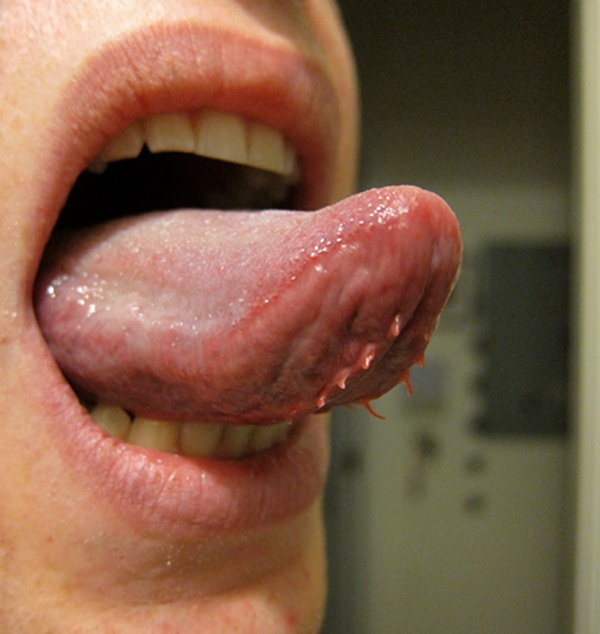 wart on my tongue