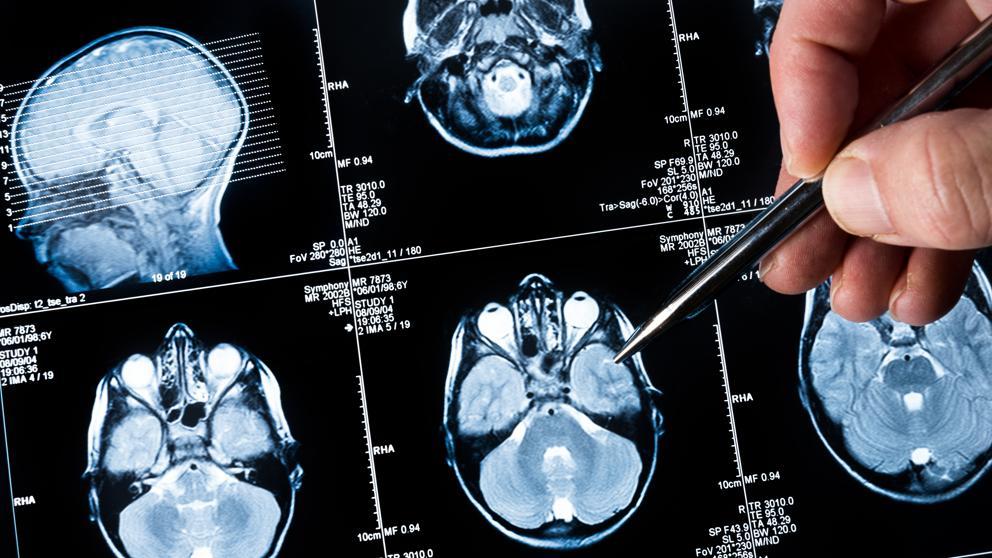 cancer cerebral como funciona conjunctival papilloma excision