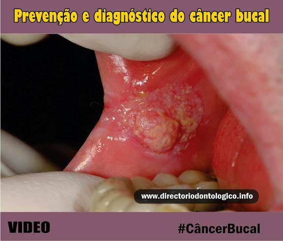 cancer orofaringe simptome