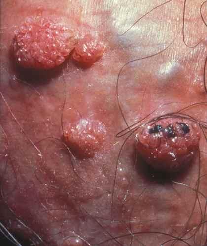verrue seborrheique papillomavirus