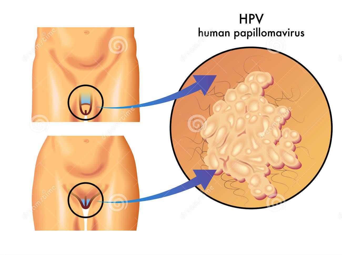 virus papiloma uomo