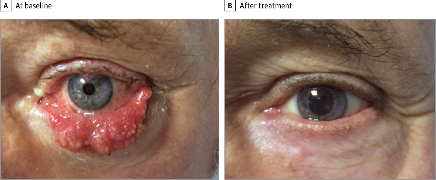 papilloma eye treatment papilloma virus vaccin homme
